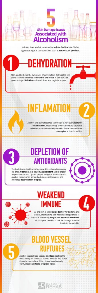 Alcoholism & Skin Damages Infograph