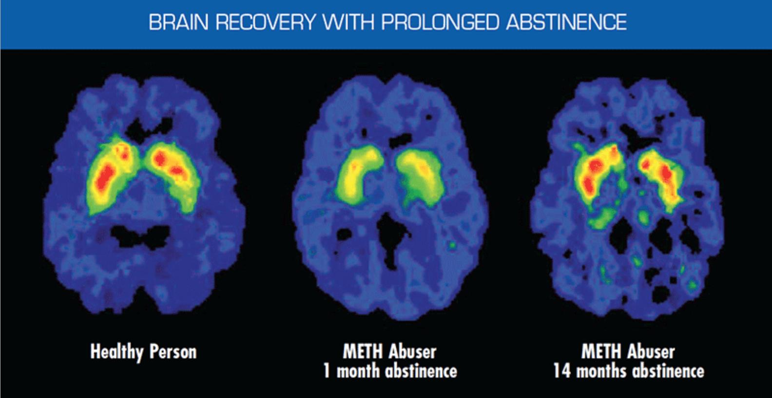 Detox And The Brain Detox To Rehab