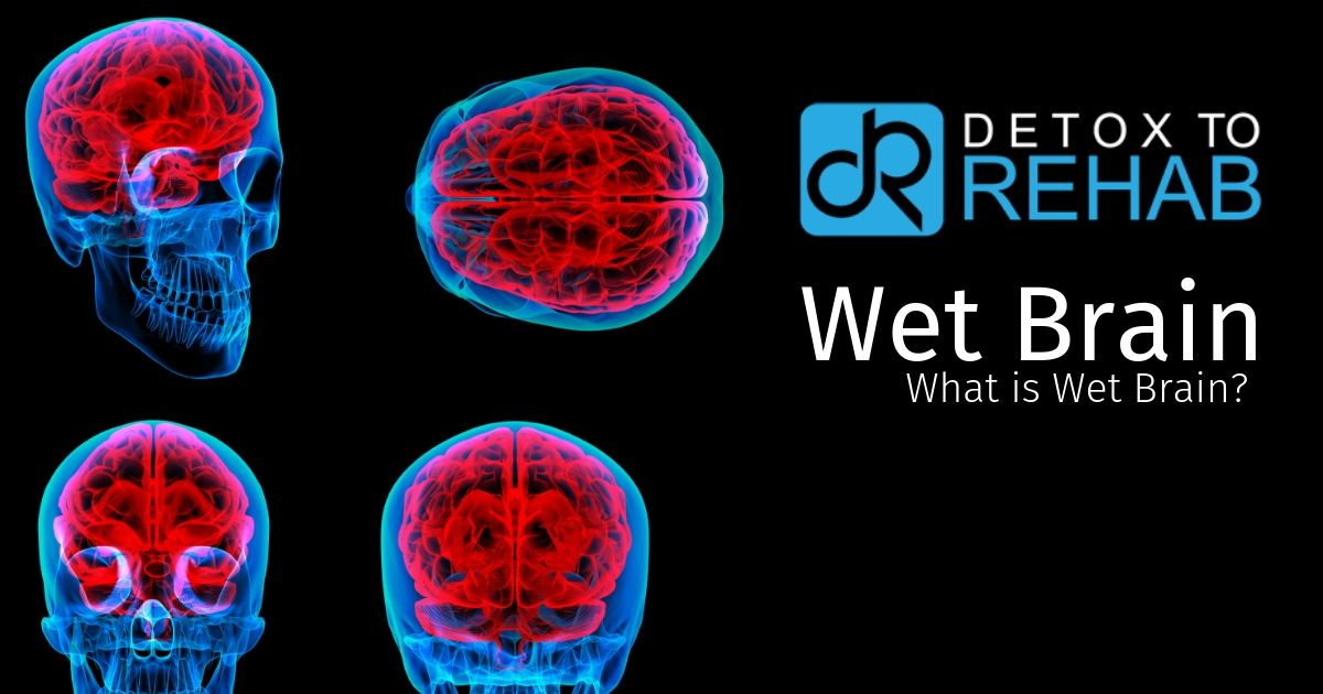 wet brain syndrome - detoxtorehab