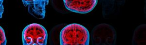 wet brain syndrome - what is it?