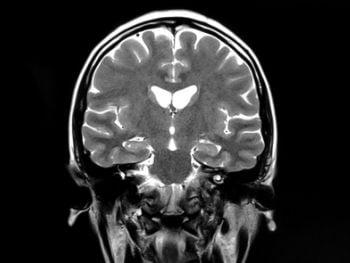 wet brain scan