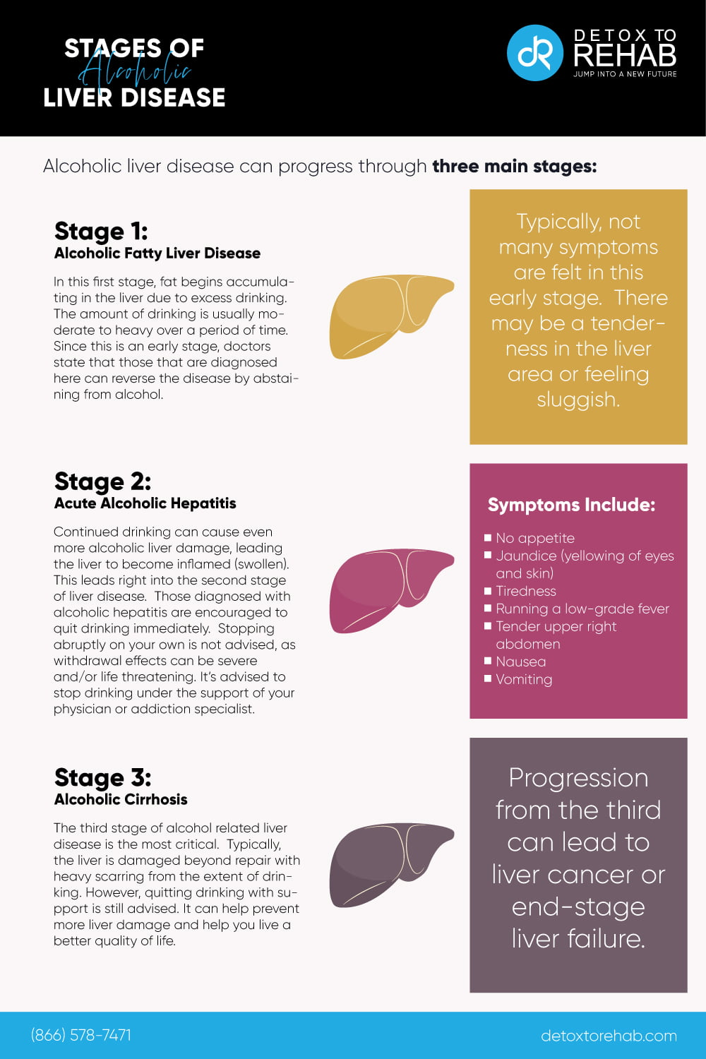 stages of alcoholic liver disease infographic