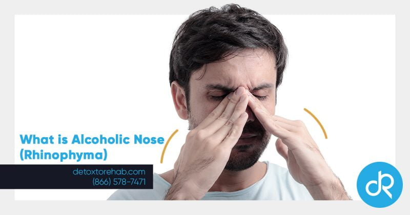 what is alcoholic nose header